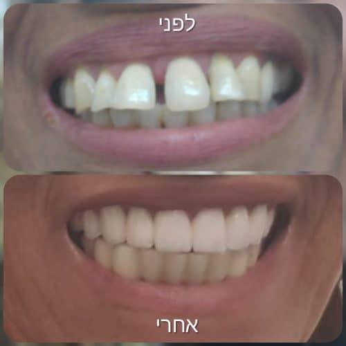 השתלות שיניים בבת ים